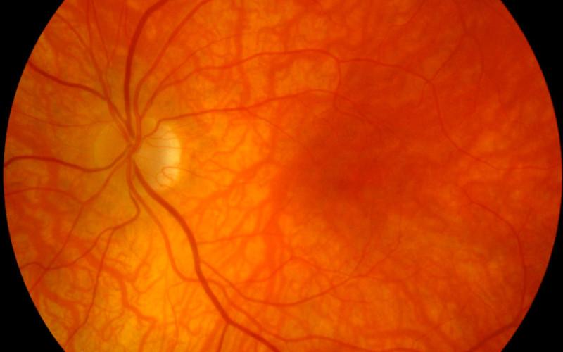 ¿Qué es el fondo de ojo?