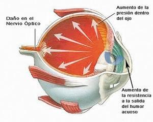 Glaucoma home